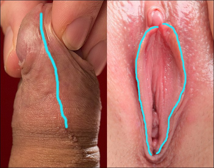 Daughter Marissa clinical pictures of clitoris because